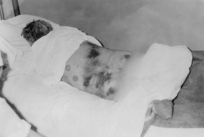 حمى القرم - الكونغولى النزفي