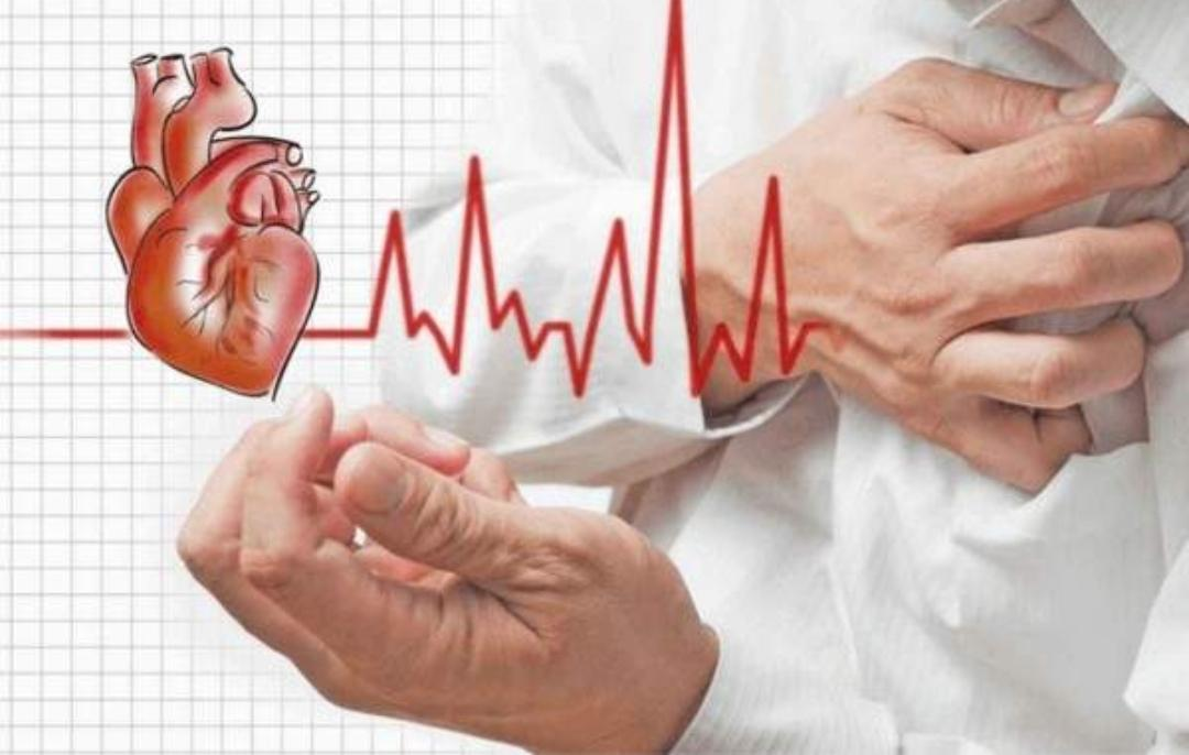 النوبة القلبية والسكتة القلبية والسكتة الدماغية
