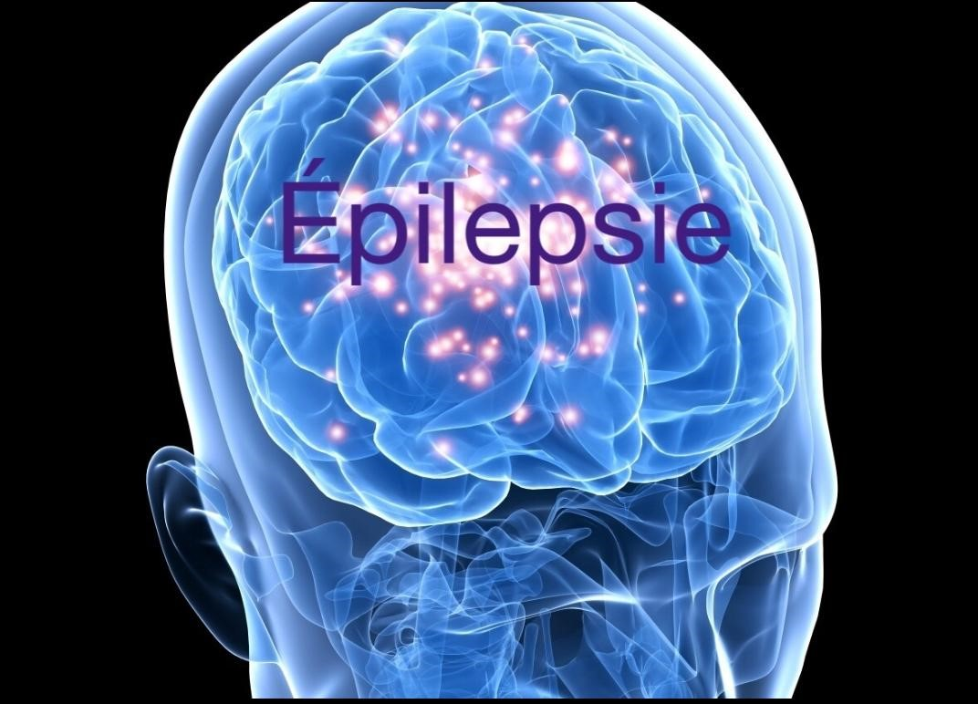 مرض الصرع  EPILEPSY  المرض الأزلي